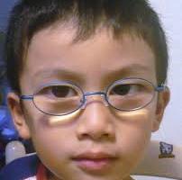 遠視のメガネは