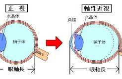 近視と眼軸長の関係