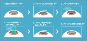レーシック手術は強度近視