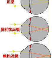 近視のメカニズム